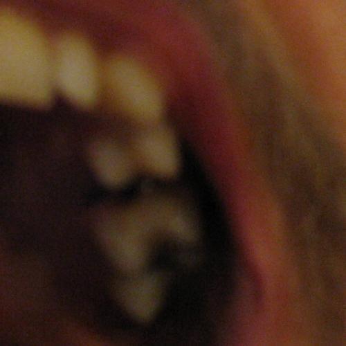 Zahnlücke