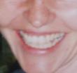 Lächeln-muede