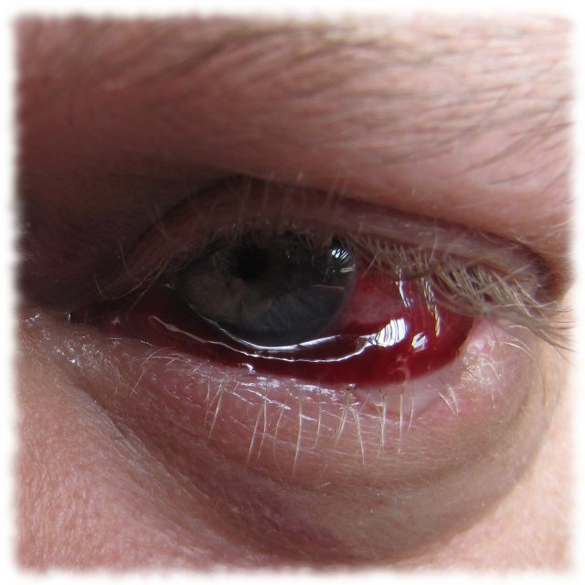 Ulfs Augen am 20.6.2011.