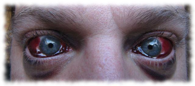 Ulfs defekte Augen am 22. Juni 2011.