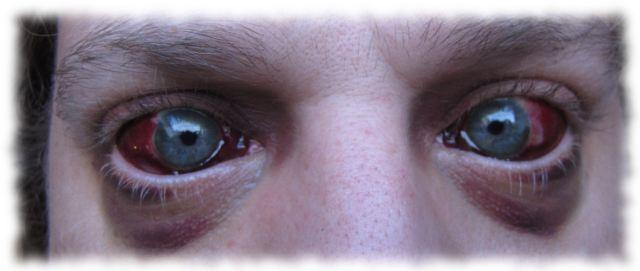 Ulfs blutige Augen am 24. Juni 2011.