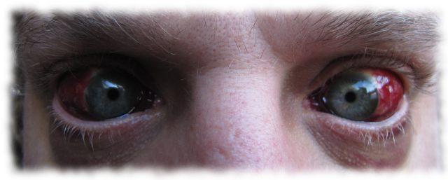 Ulfs Augen am Abend des 26. Juni 2011.