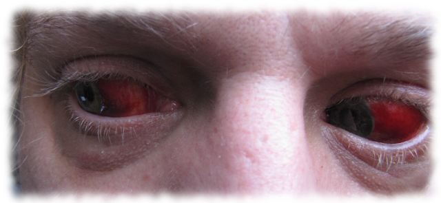 Ulfs blutige Augen am 28. Juni 2011.