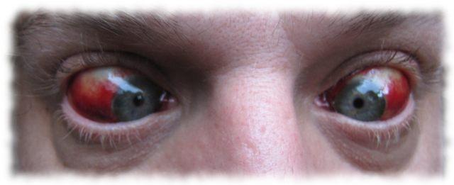 Ulf seine Augen am 30. Juni.