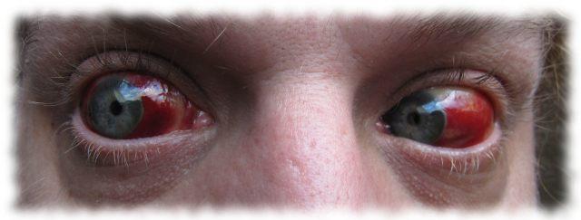 Ulfs Augen am 1. Juli.