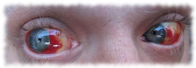 Ulfs blutige Augen am 5.7.2011.