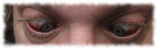 Ulfs Augen am 7. Juli 2011.