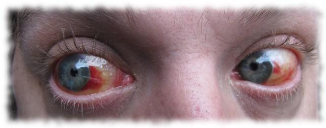 Ulfs Augen, 9. Juli 2011.