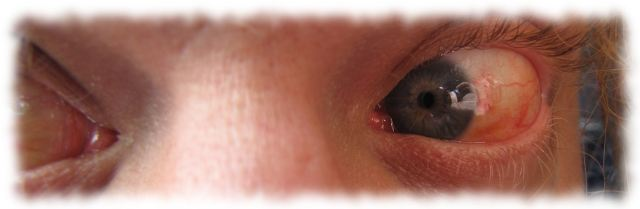 Ulfs Augen, 11. Juli 2011.