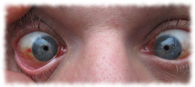 Ulfs kaum noch blutige Augen am 13. Juli 2011.