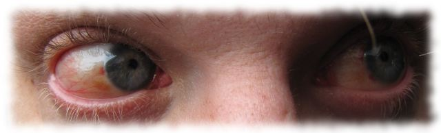 Ulfs Augen, 15. Juli 2011.