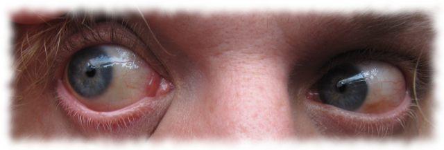 Ulfs Augen, am 19. Juli 2011 so gut wie normal.