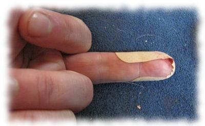 Ulfs schreckliche Fingerverletzung (verpflastert).