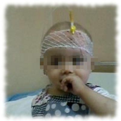 Krebskrankes Kleinkind.