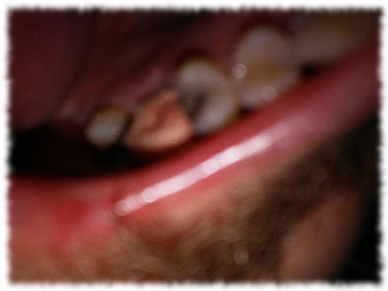 Etwas unscharf abgelichtete Kauleiste mit blutigem Tupfer und der frischen Zahnlücke.