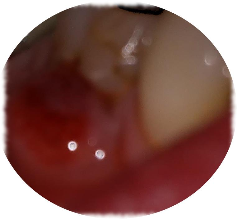 Plakat: Zahnschmerz verbieten! Karies raus!
