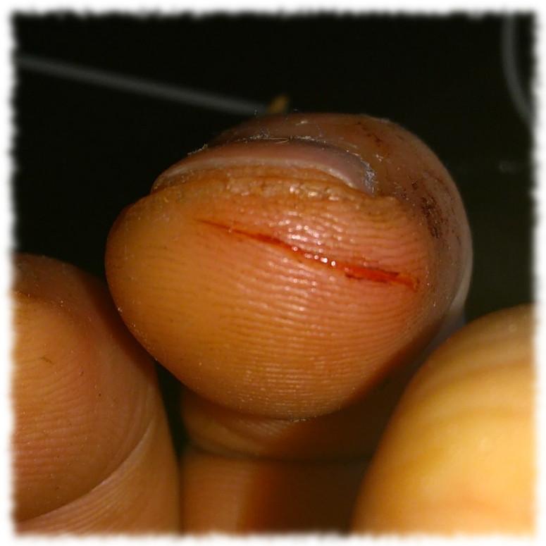 Fingerkuppe mit Schnittwunde, erster Tag.