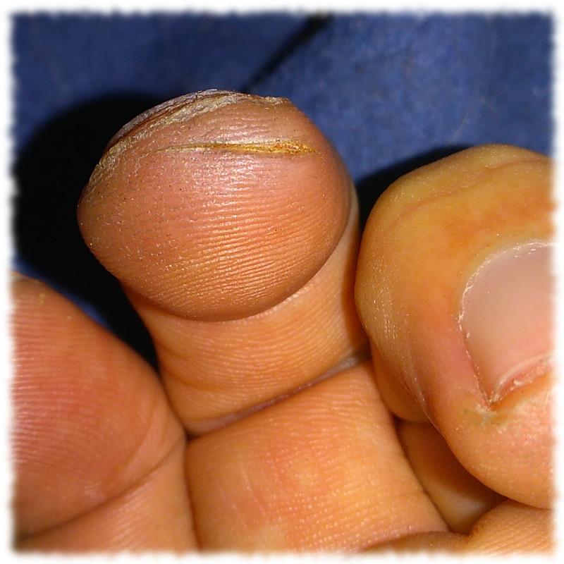 Schnittwunde an der Fingerkuppe des linken Mitelfingers, vierter Tag nach dem Ereignis. Heilt so vor sich hin.