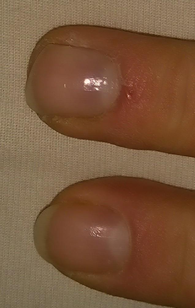 Zeigefinger und Mittelfinger (Nägel)