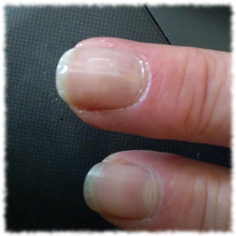 Frisch mit Nagelhärter lackierter Mittelfingernagel